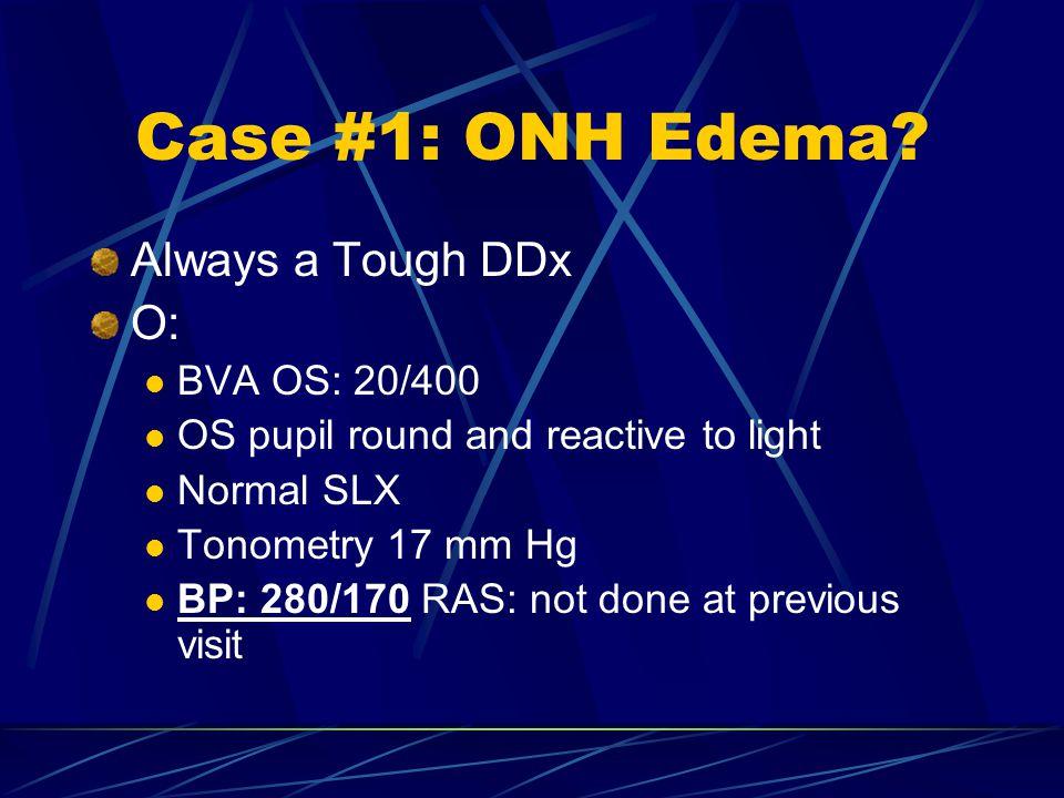 Case #1: ONH Edema Always a Tough DDx O: BVA OS: 20/400