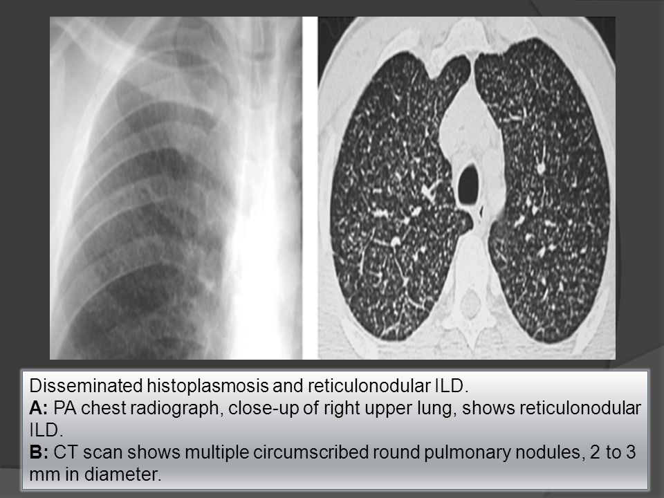 Disseminated histoplasmosis and reticulonodular ILD.