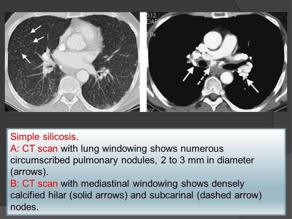 Simple silicosis. A: CT scan with lung windowing shows numerous circumscribed pulmonary nodules, 2 to 3 mm in diameter (arrows).
