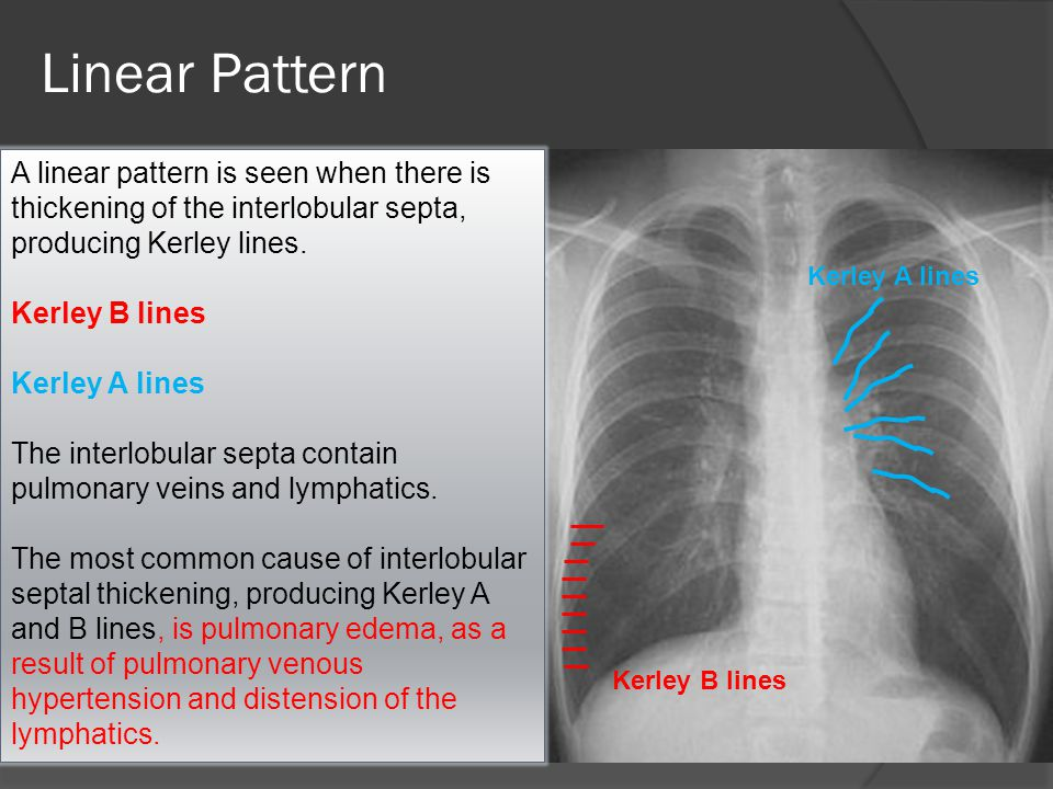 Linear Pattern A linear pattern is seen when there is thickening of the interlobular septa, producing Kerley lines.