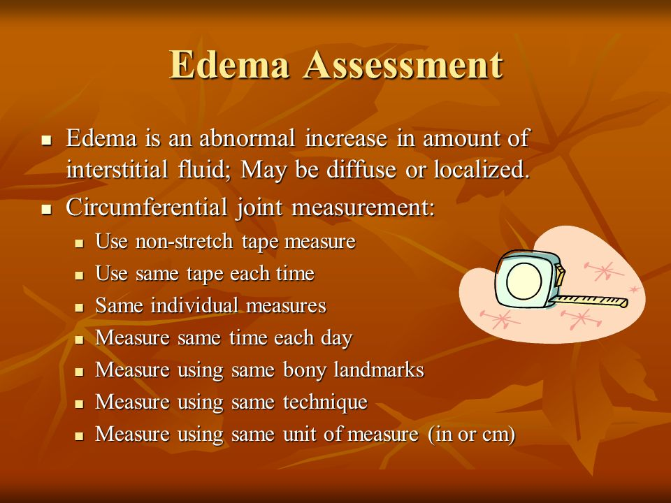 Edema Assessment Edema is an abnormal increase in amount of interstitial fluid; May be diffuse or localized.