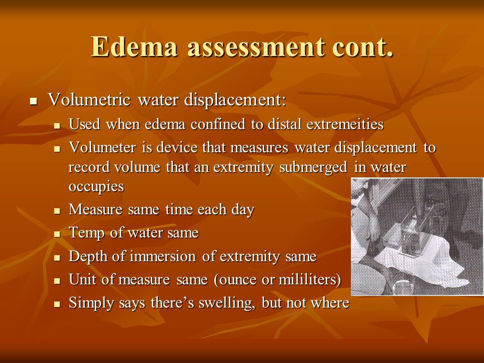 Edema assessment cont. Volumetric water displacement: