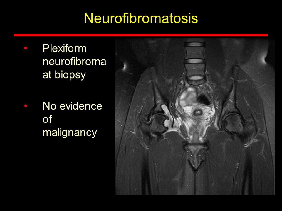 Neurofibromatosis Plexiform neurofibroma at biopsy