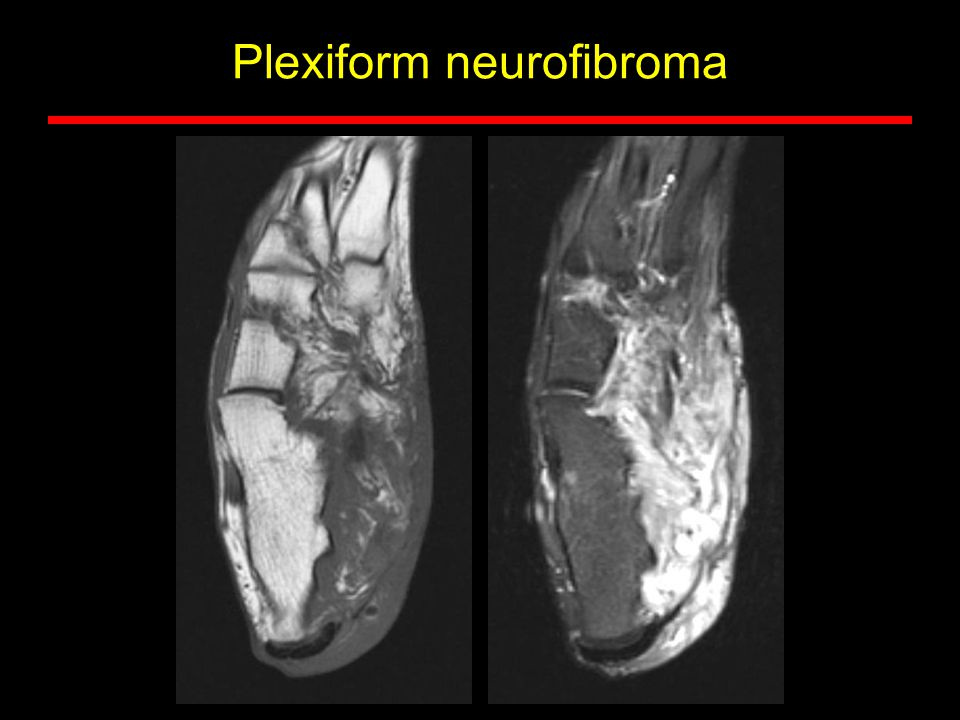 Plexiform neurofibroma