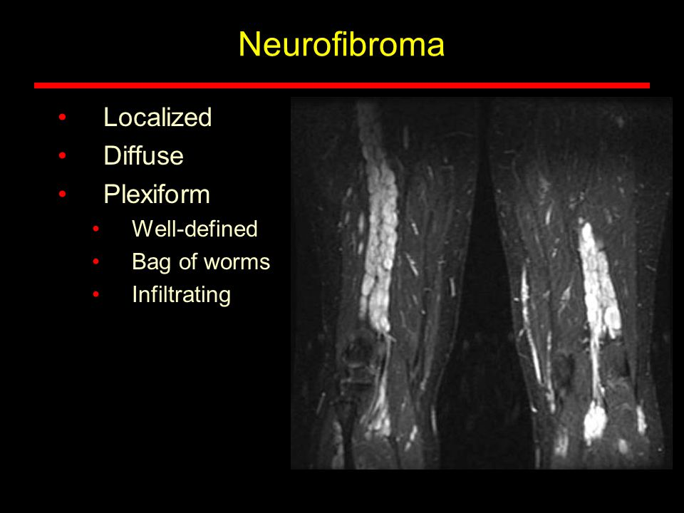 Neurofibroma Localized Diffuse Plexiform Well-defined Bag of worms