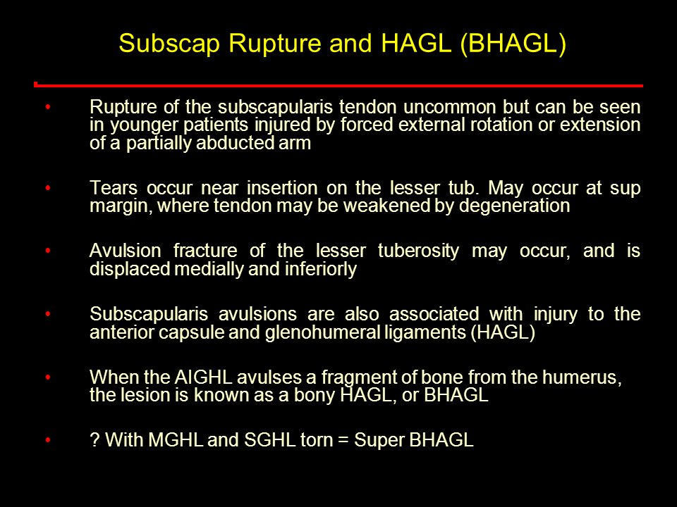 Subscap Rupture and HAGL (BHAGL)