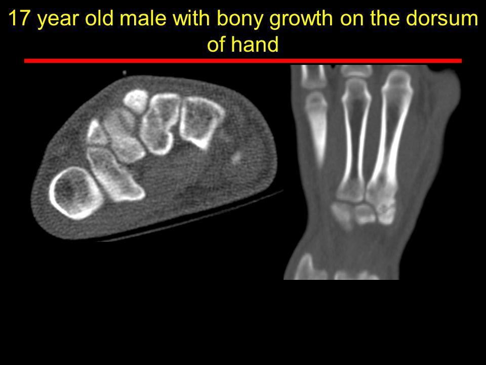 17 year old male with bony growth on the dorsum of hand