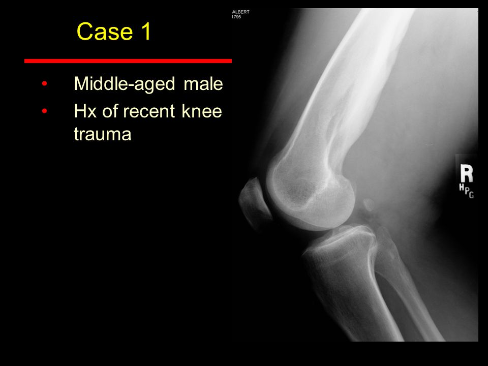 Case 1 Middle-aged male Hx of recent knee trauma