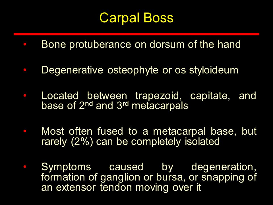 Carpal Boss Bone protuberance on dorsum of the hand