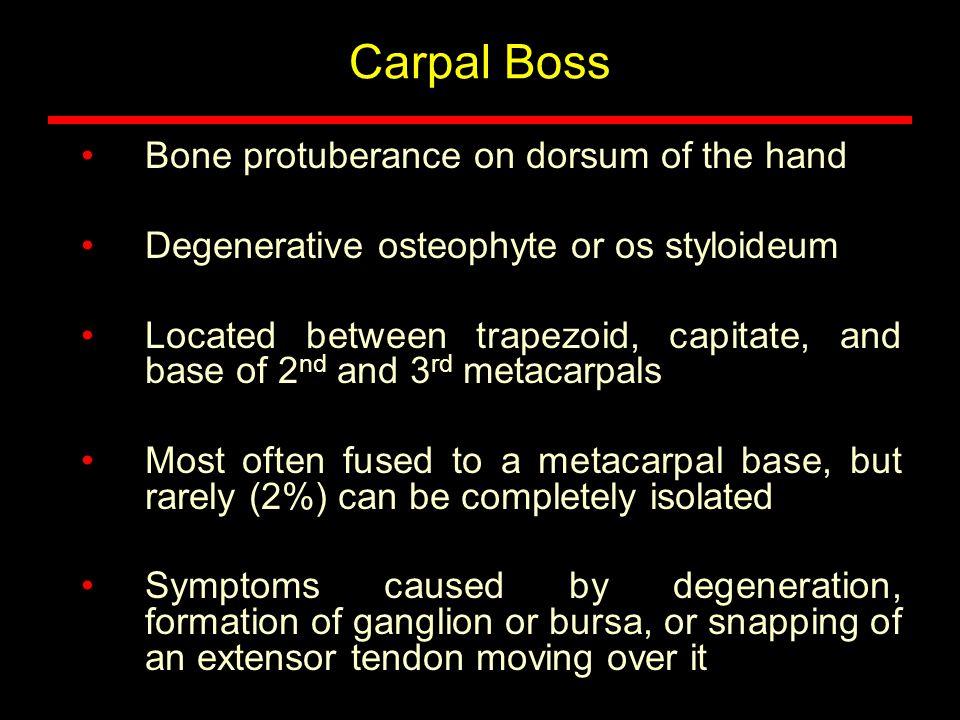 Carpal Boss Bone protuberance on dorsum of the hand
