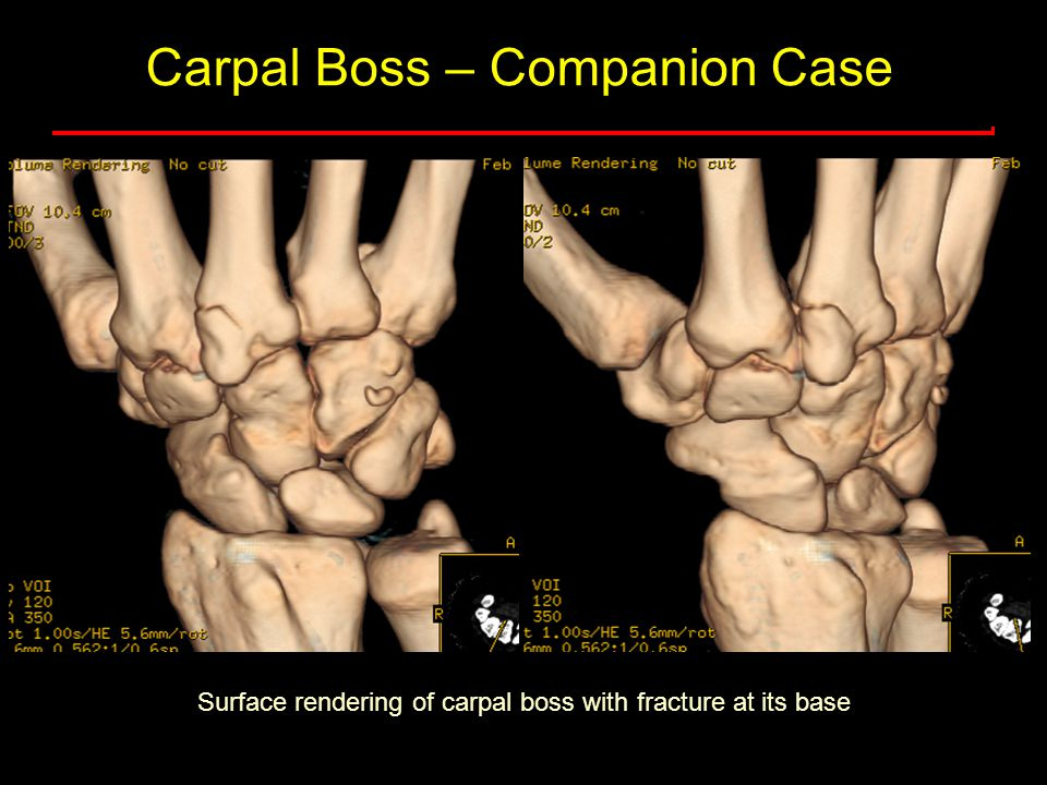 Carpal Boss – Companion Case