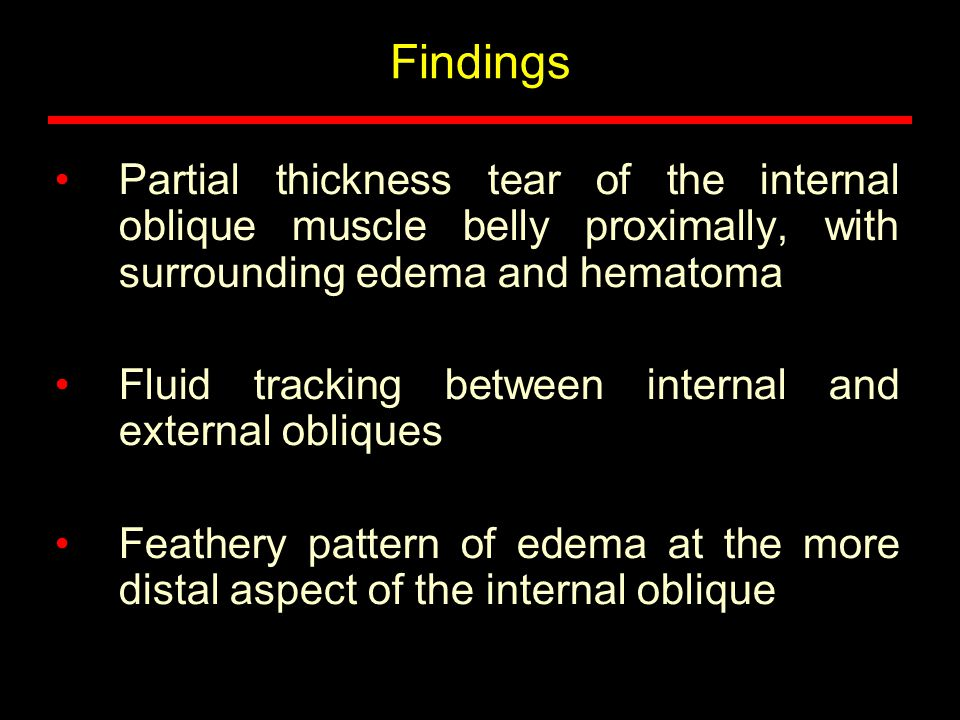 Findings Partial thickness tear of the internal oblique muscle belly proximally, with surrounding edema and hematoma.