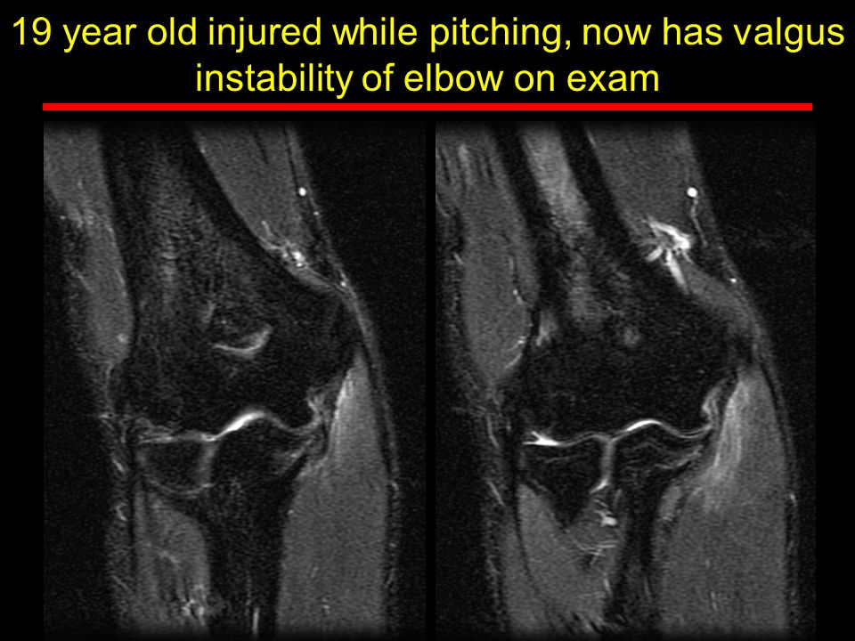 19 year old injured while pitching, now has valgus instability of elbow on exam