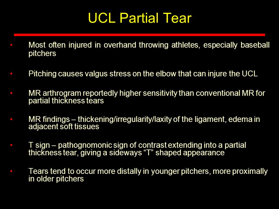 UCL Partial Tear Most often injured in overhand throwing athletes, especially baseball pitchers.