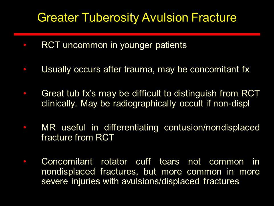 Greater Tuberosity Avulsion Fracture