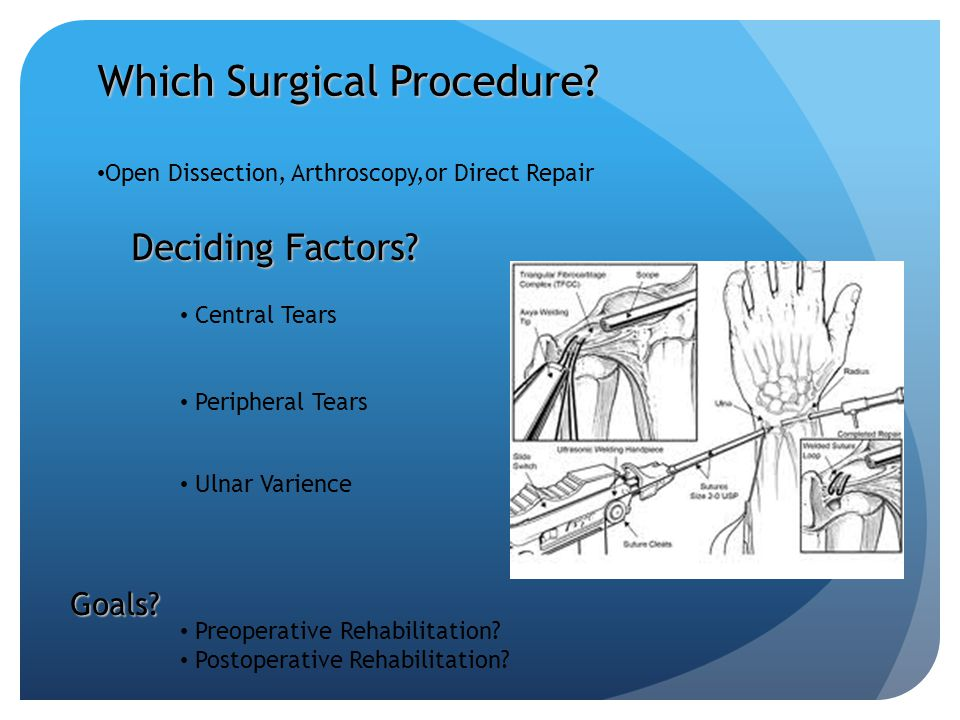 Which Surgical Procedure