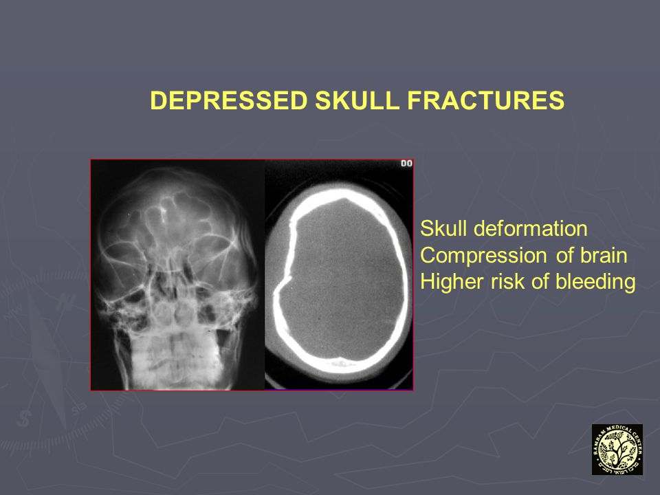 DEPRESSED SKULL FRACTURES