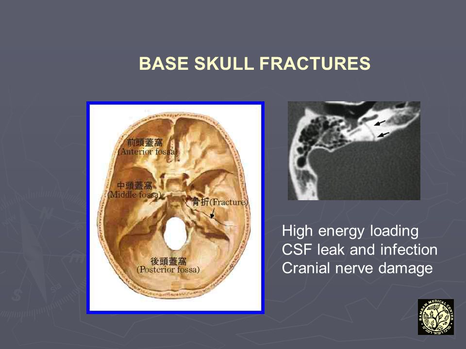 BASE SKULL FRACTURES High energy loading CSF leak and infection