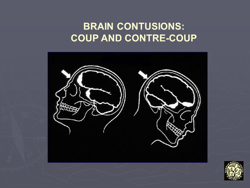 BRAIN CONTUSIONS: COUP AND CONTRE-COUP