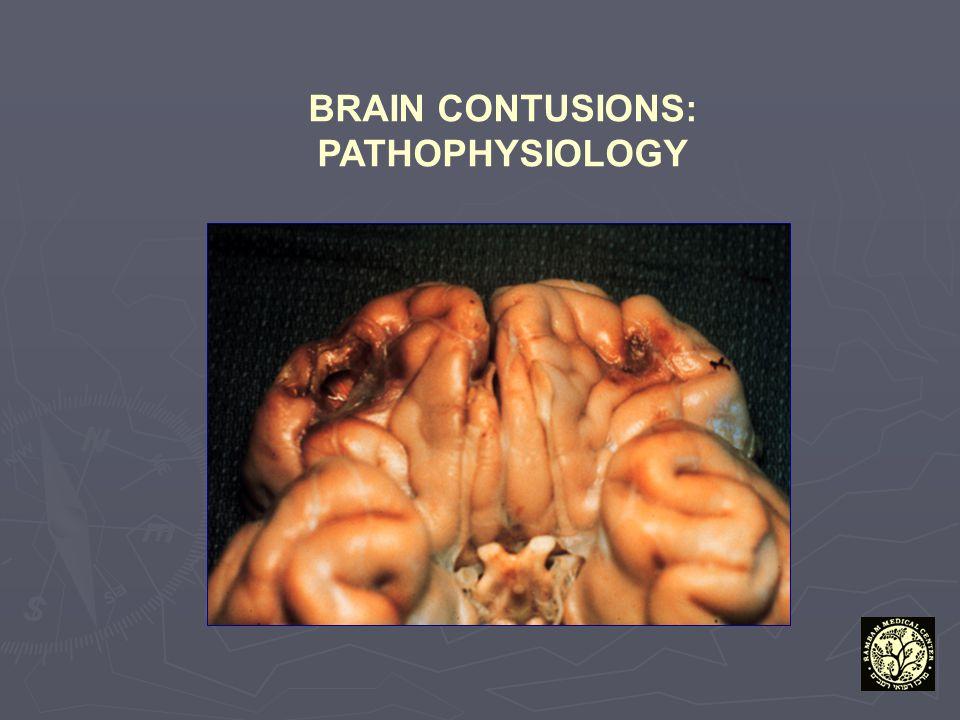 BRAIN CONTUSIONS: PATHOPHYSIOLOGY
