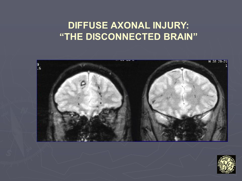 DIFFUSE AXONAL INJURY: THE DISCONNECTED BRAIN