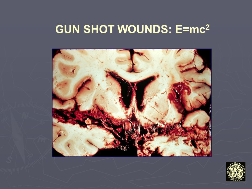 GUN SHOT WOUNDS: E=mc2