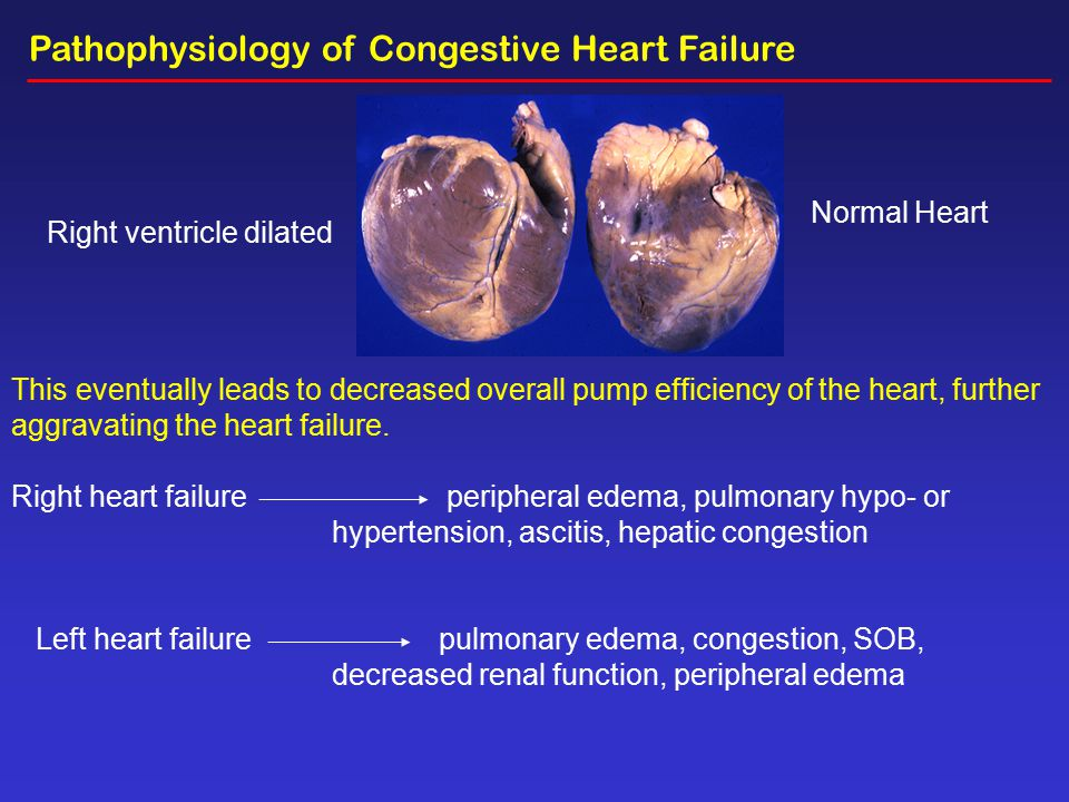 pathophysiology of chf Anemia in heart failure: pathophysiology, pathogenesis, treatment, and  incognitae carlos caramelo a, soledad justo a, paloma gil b a instituto de.