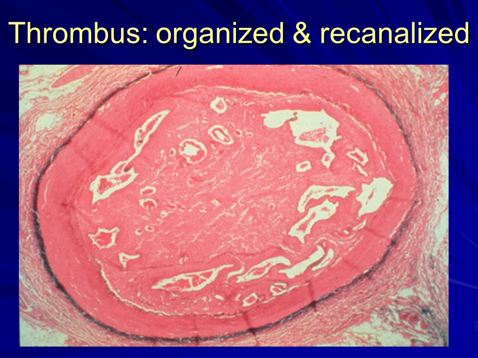 Thrombus: organized & recanalized