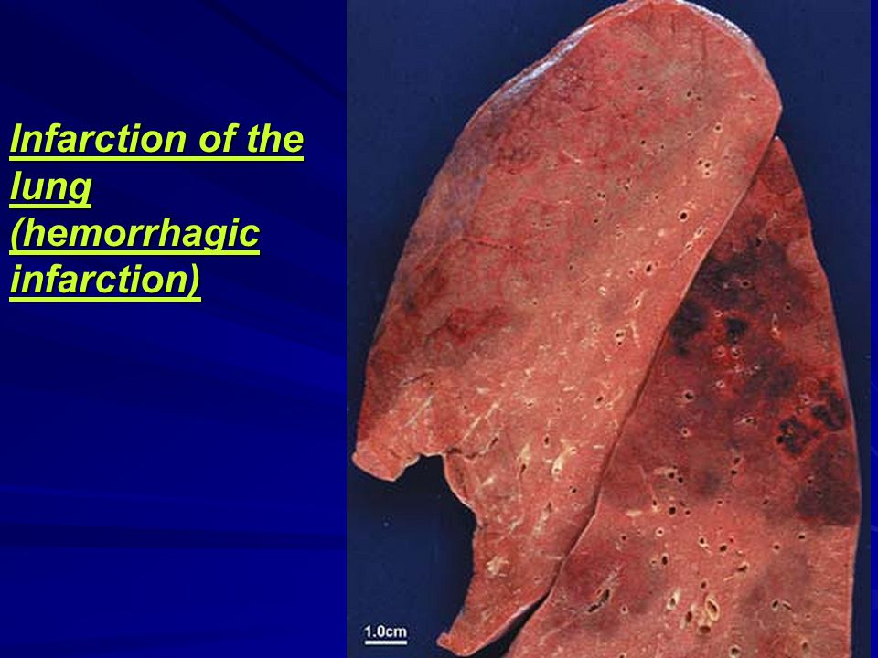 Infarction of the lung (hemorrhagic infarction)