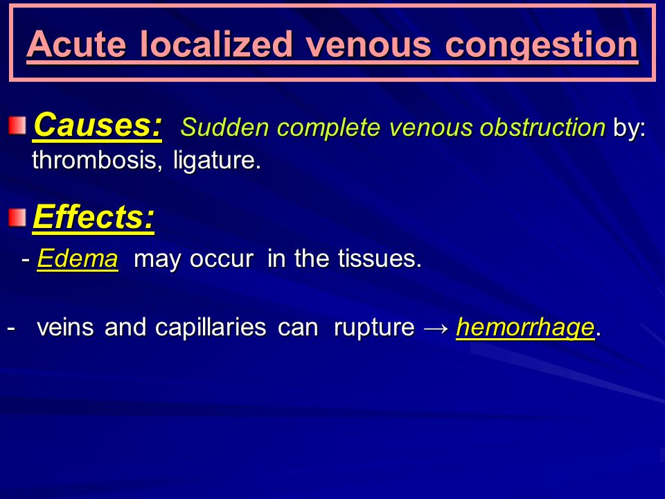 Acute localized venous congestion