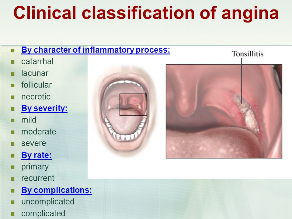 Clinical classification of angina