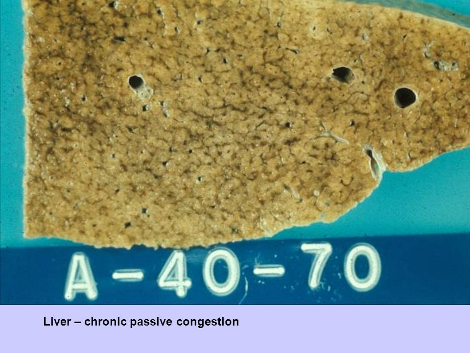 Liver – chronic passive congestion