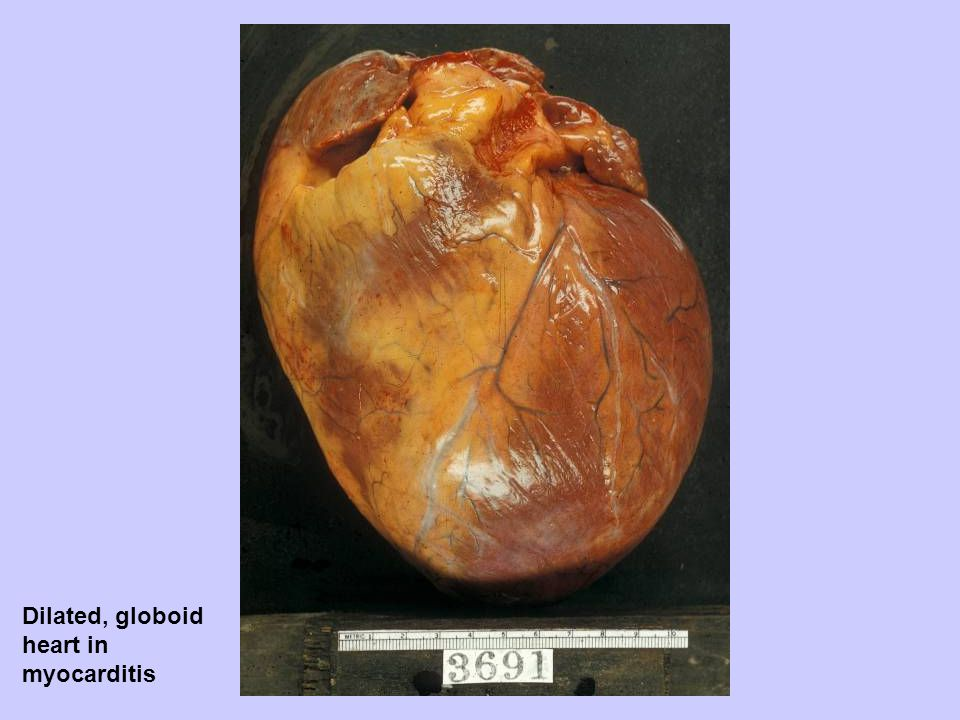 Dilated, globoid heart in myocarditis