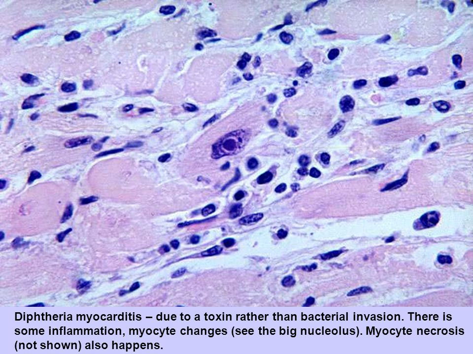 Diphtheria myocarditis – due to a toxin rather than bacterial invasion