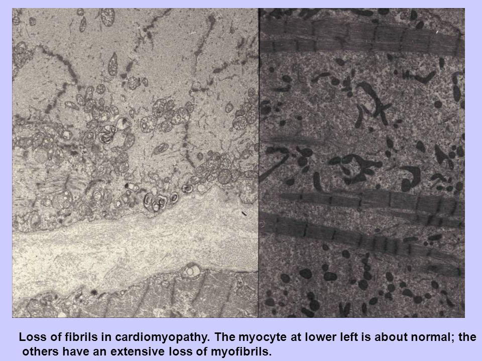 Loss of fibrils in cardiomyopathy