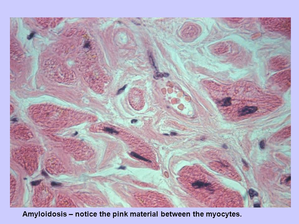 Amyloidosis – notice the pink material between the myocytes.