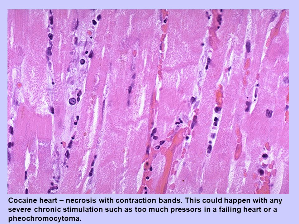 Cocaine heart – necrosis with contraction bands