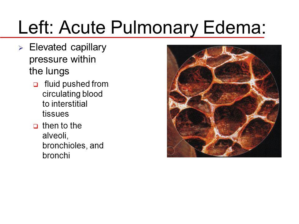 Left: Acute Pulmonary Edema: