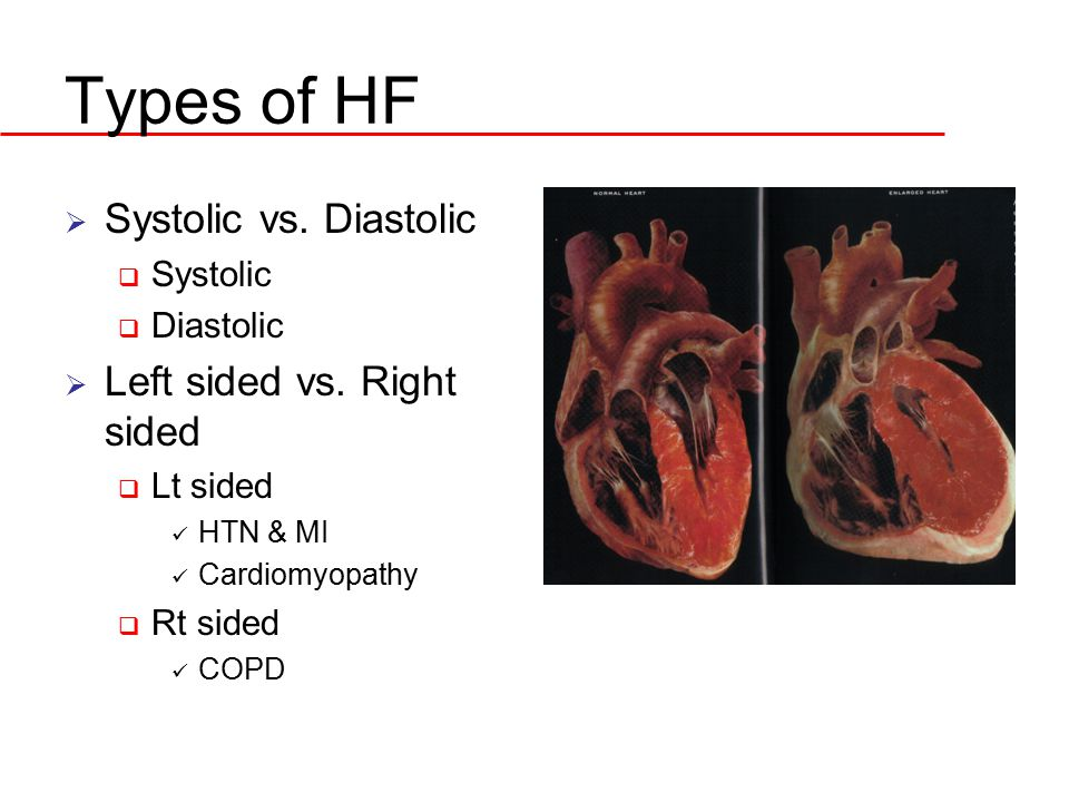 Types of HF Systolic vs. Diastolic Left sided vs. Right sided Systolic