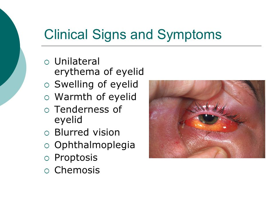 Clinical Signs and Symptoms