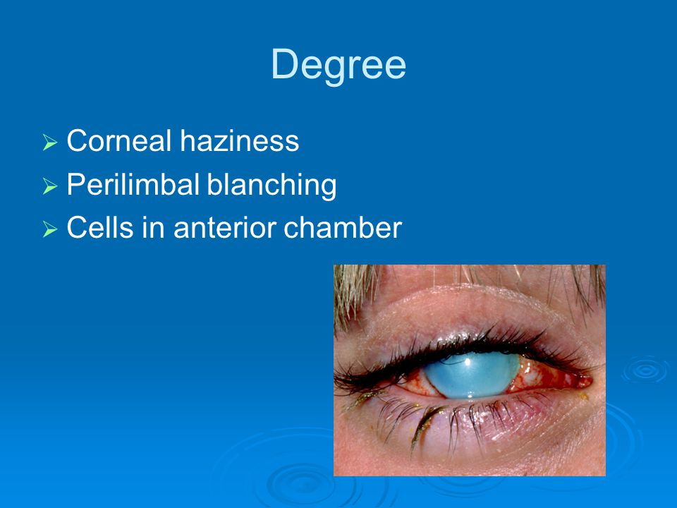 Degree Corneal haziness Perilimbal blanching Cells in anterior chamber