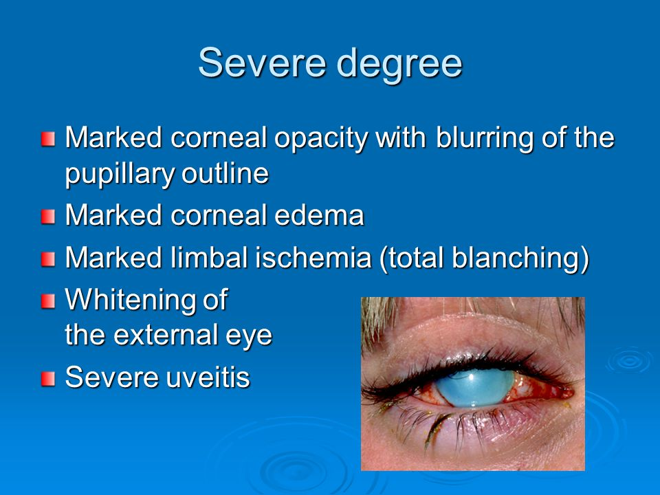 Severe degree Marked corneal opacity with blurring of the pupillary outline. Marked corneal edema.