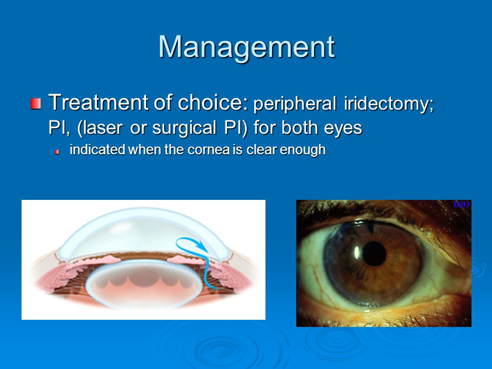 Management Treatment of choice: peripheral iridectomy; PI, (laser or surgical PI) for both eyes.
