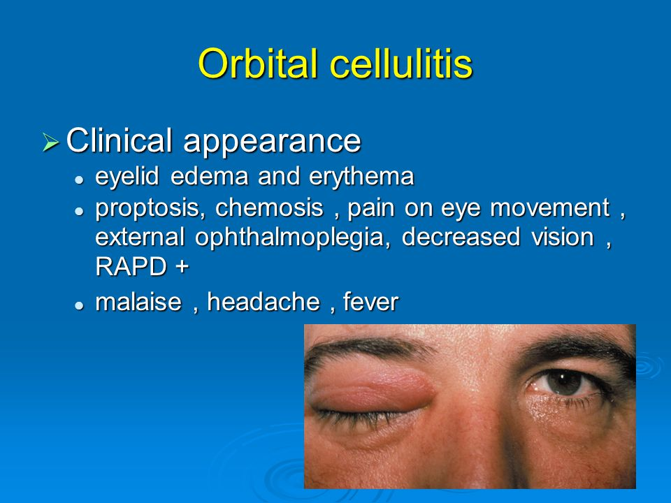 Orbital cellulitis Clinical appearance eyelid edema and erythema