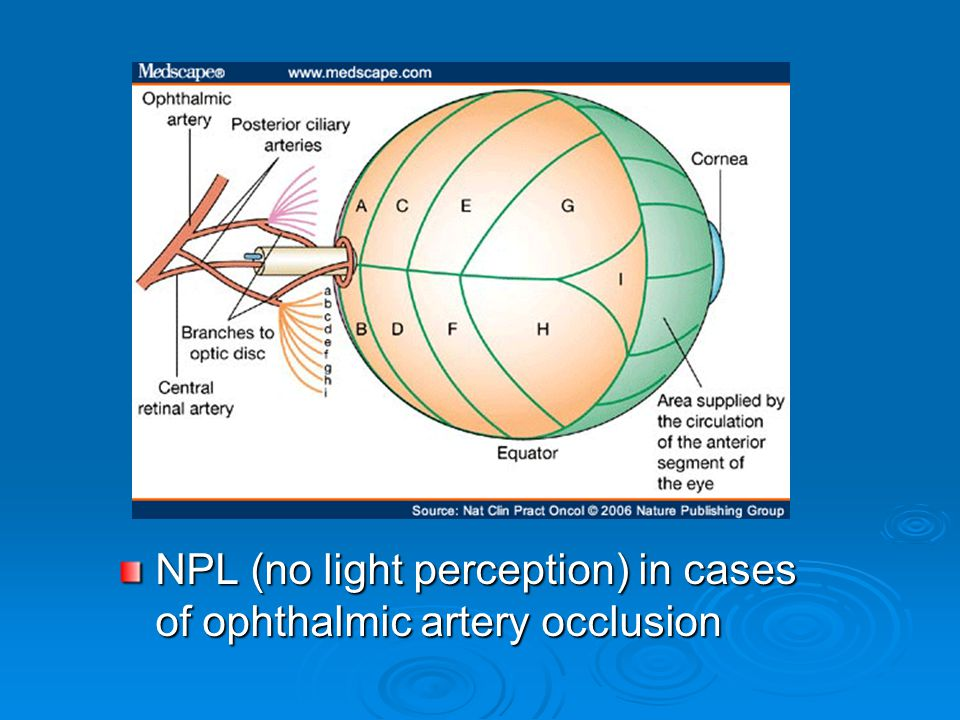 NPL (no light perception) in cases of ophthalmic artery occlusion