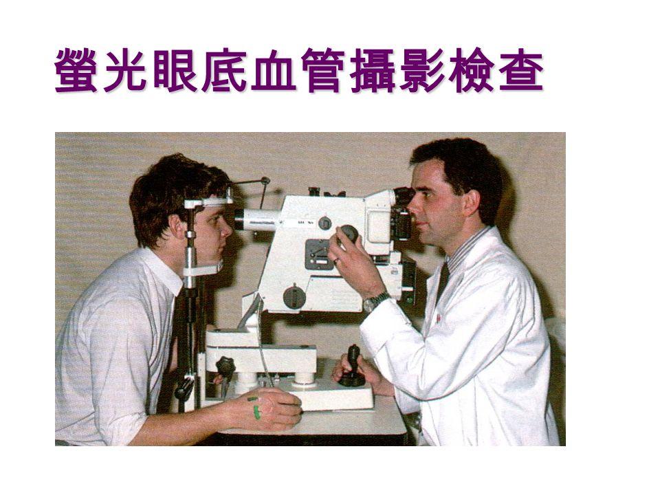 螢光眼底血管攝影檢查