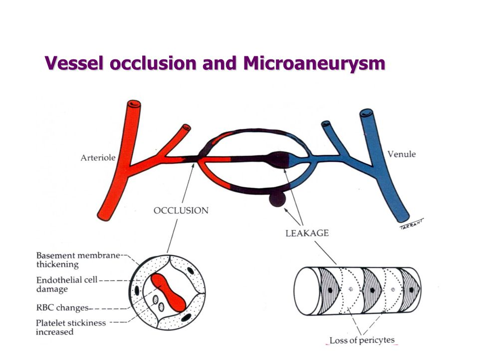 Vessel occlusion and Microaneurysm