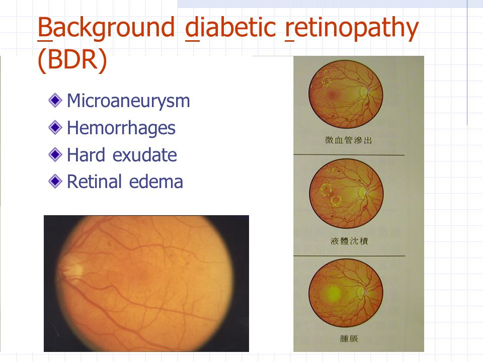 Background diabetic retinopathy (BDR)