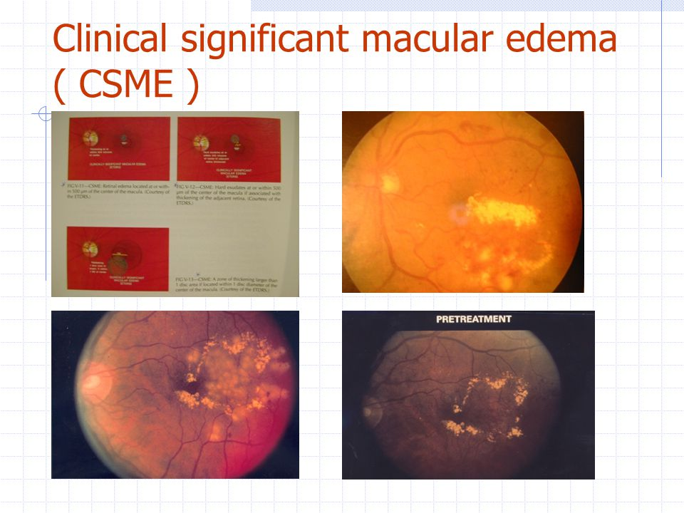Clinical significant macular edema ( CSME )