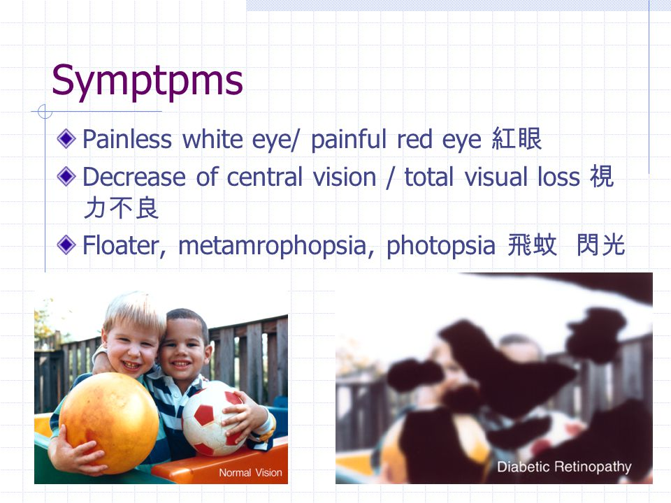 Symptpms Painless white eye/ painful red eye 紅眼